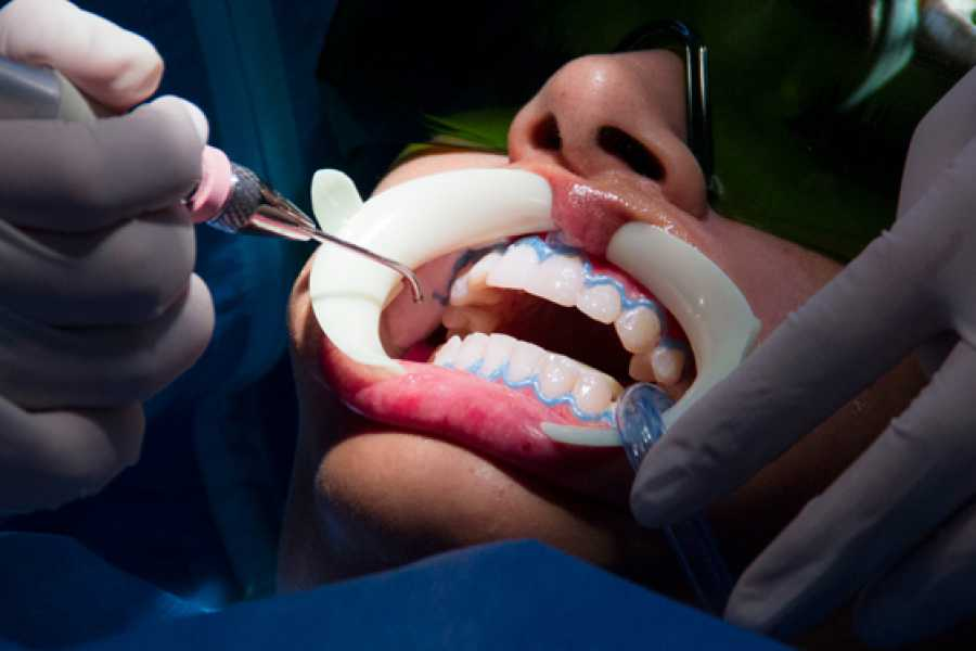 Medellin City Services 6 Veneers resin and whitening lower